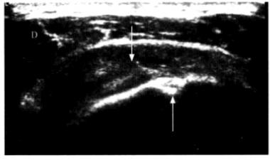 专家发现超声诊断肩袖撕裂伤更佳