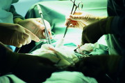 术前诊断肝脏透明细胞癌1例